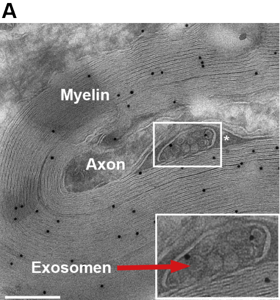 Exosomes (red arrow) are small vesicles that contain proteins and nucleic acids