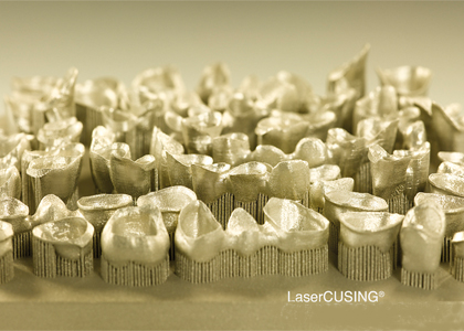 Concept Laser's compact 3D Printer performs well in the dental industry